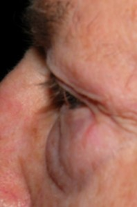 Blepharoplasty Can Reduce Baggy Eyelids