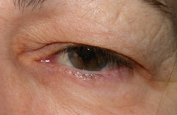 Ptosis (droopy eyelid)