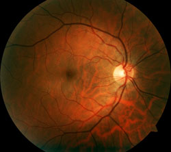 Dilated Examination Showing Healthy Retina
