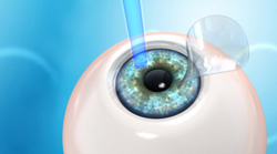 Laser Vision Correction Procedure